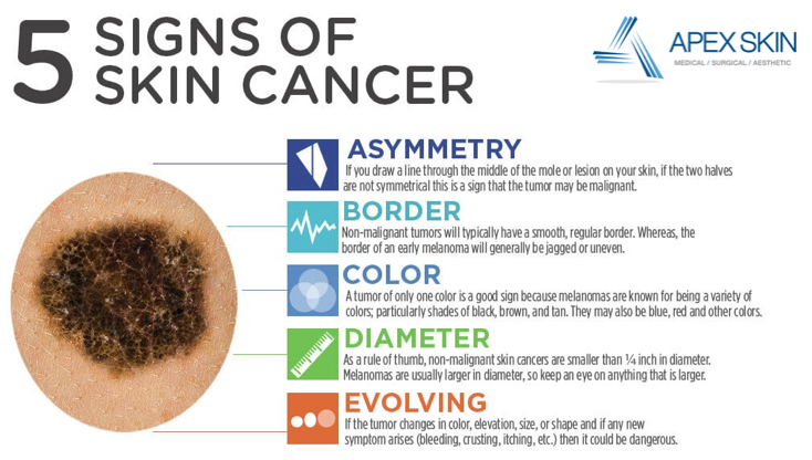 5-signs-of-skin-cancer