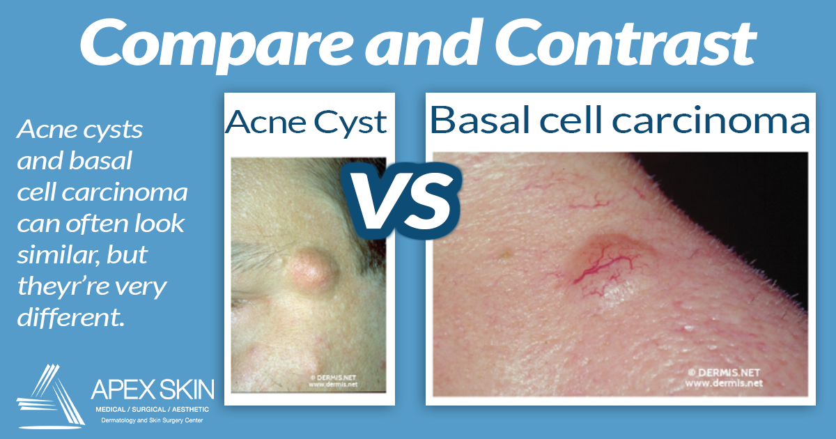 acne cyst versus skin cancer