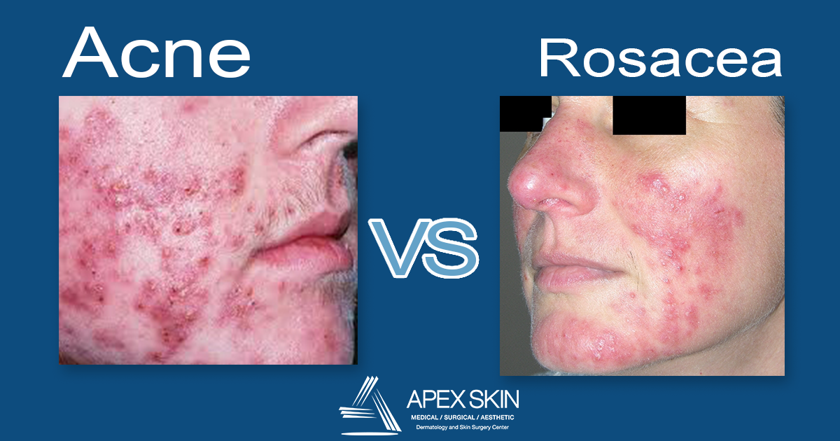 acne vs rosacea