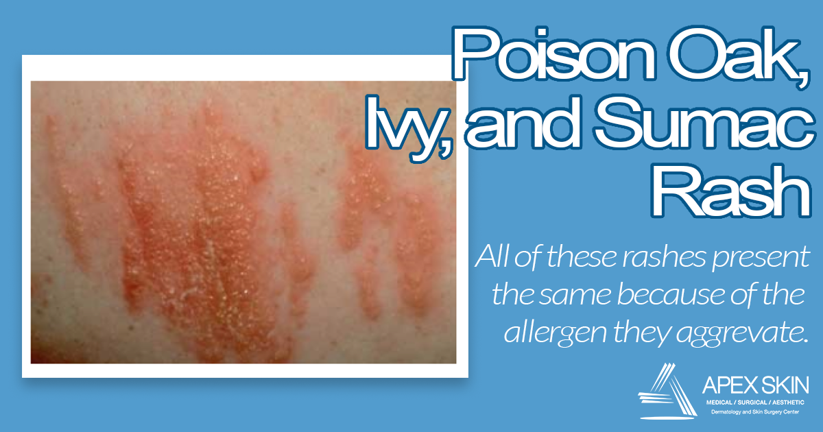 poison oak rash