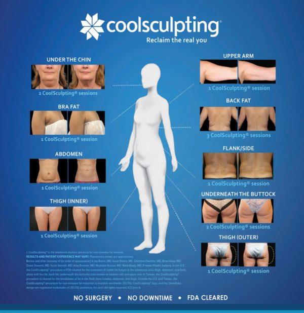where does coolsculpting work