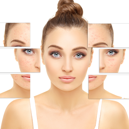 5 causes of acne and pimples