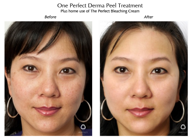 perfect derma peel before and after