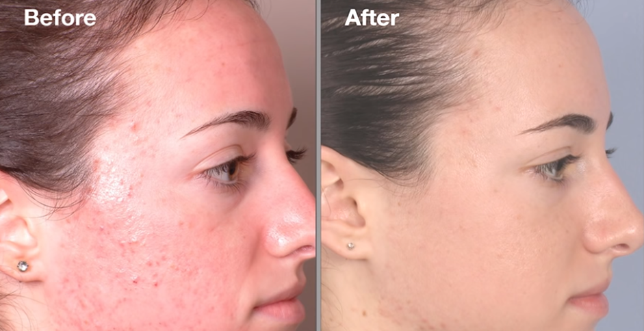 dermalinfusion before and after