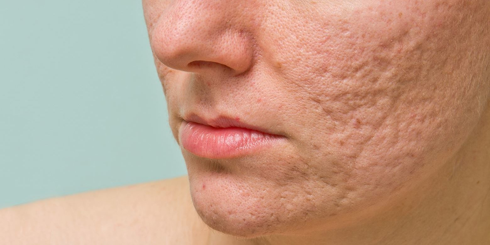How To Get Rid Of Acne Scars A Full Breakdown Apex Dermatology Skin Surgery Center Cleveland Oh Dermatology