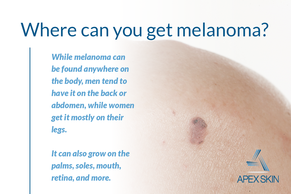 Melanoma A Skin Cancer Expert Shares What You Need To Know About The Deadliest Form Of Skin Cancer Apex Dermatology Skin Surgery Center Cleveland Oh Dermatology