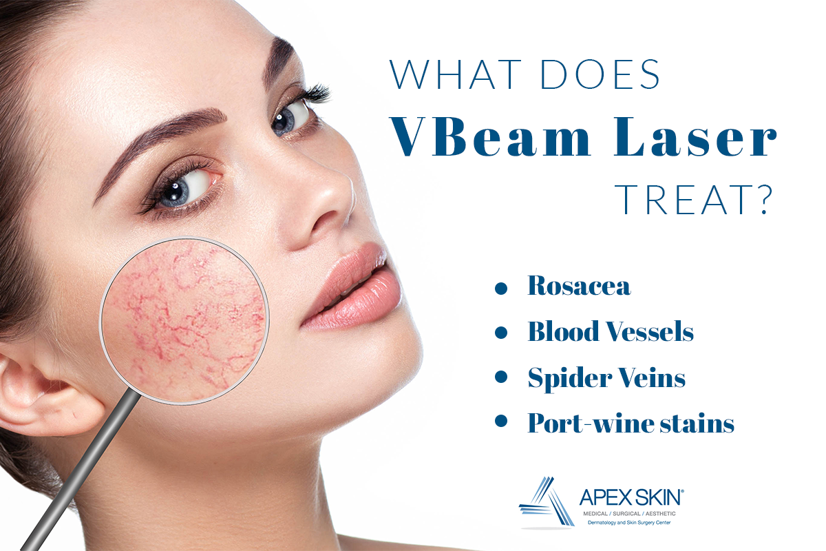 what does vbeam treat